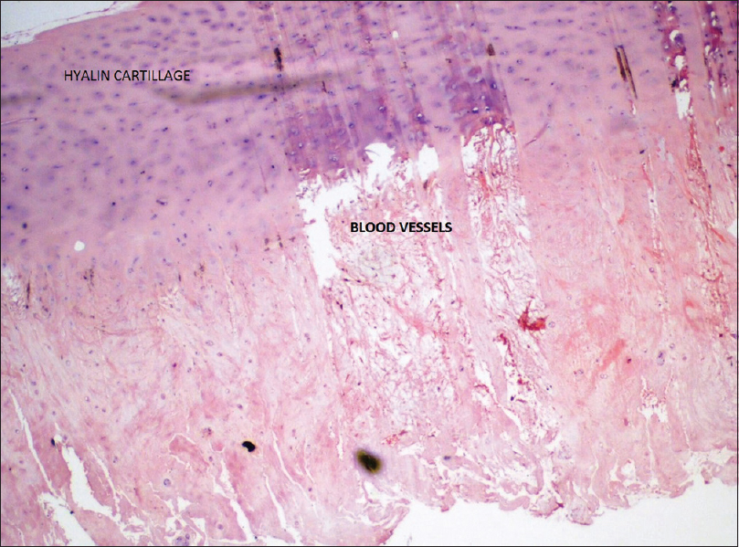 Figure 5: Histopathological photograph of the end plate material